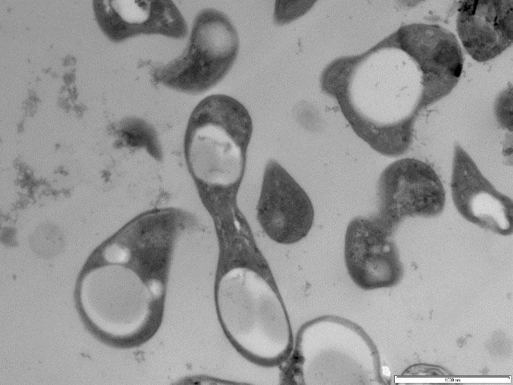 Methylocystis parvus BRCS2 methanotroph bacteria showing PHB bioplastic deposits as the white spots