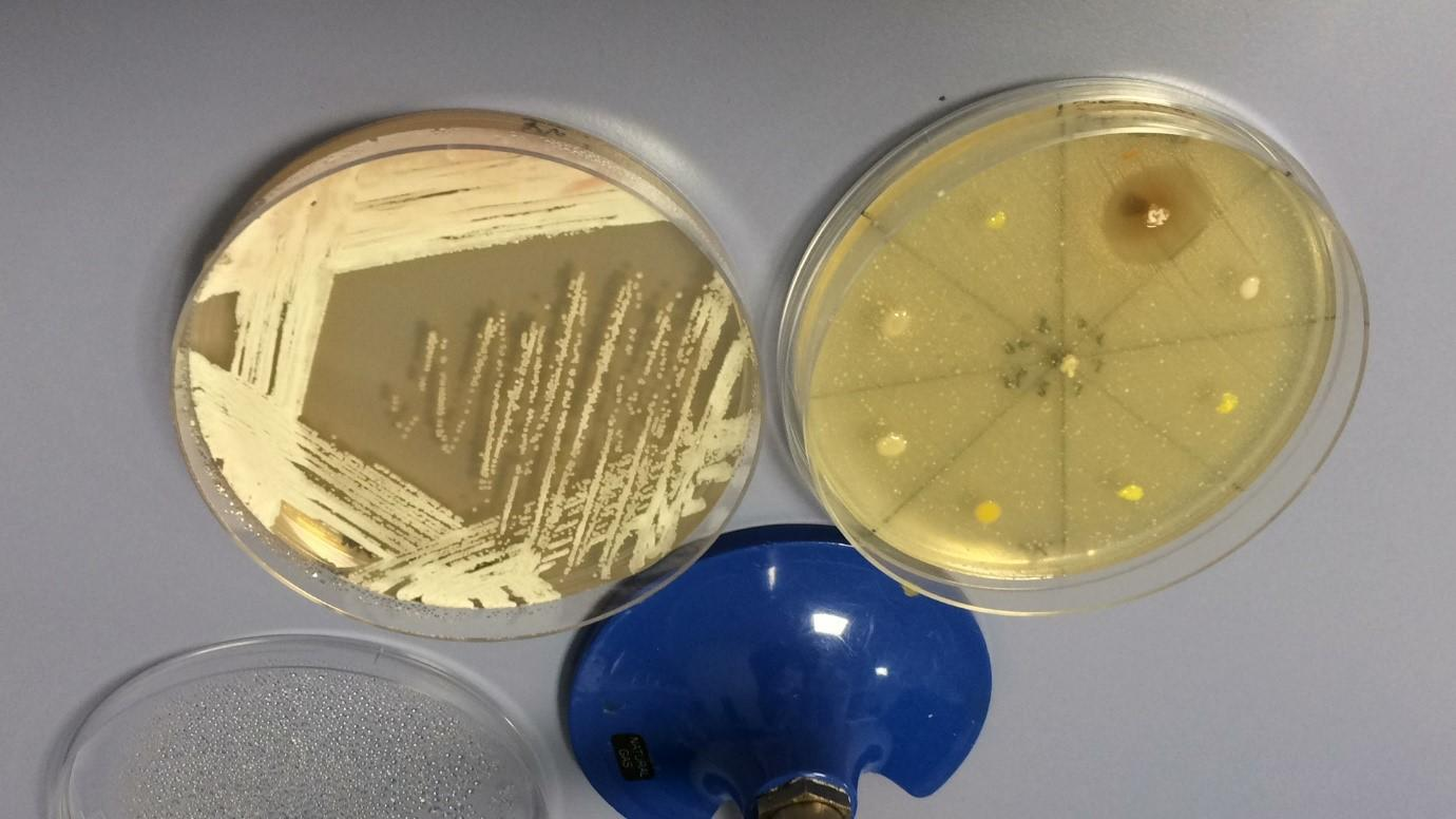 Screening bacteria for antimicrobial resistance in the lab